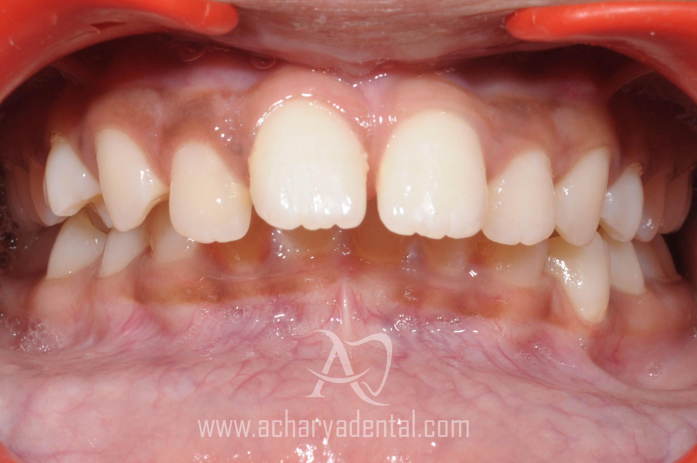 orthodontics treatment before