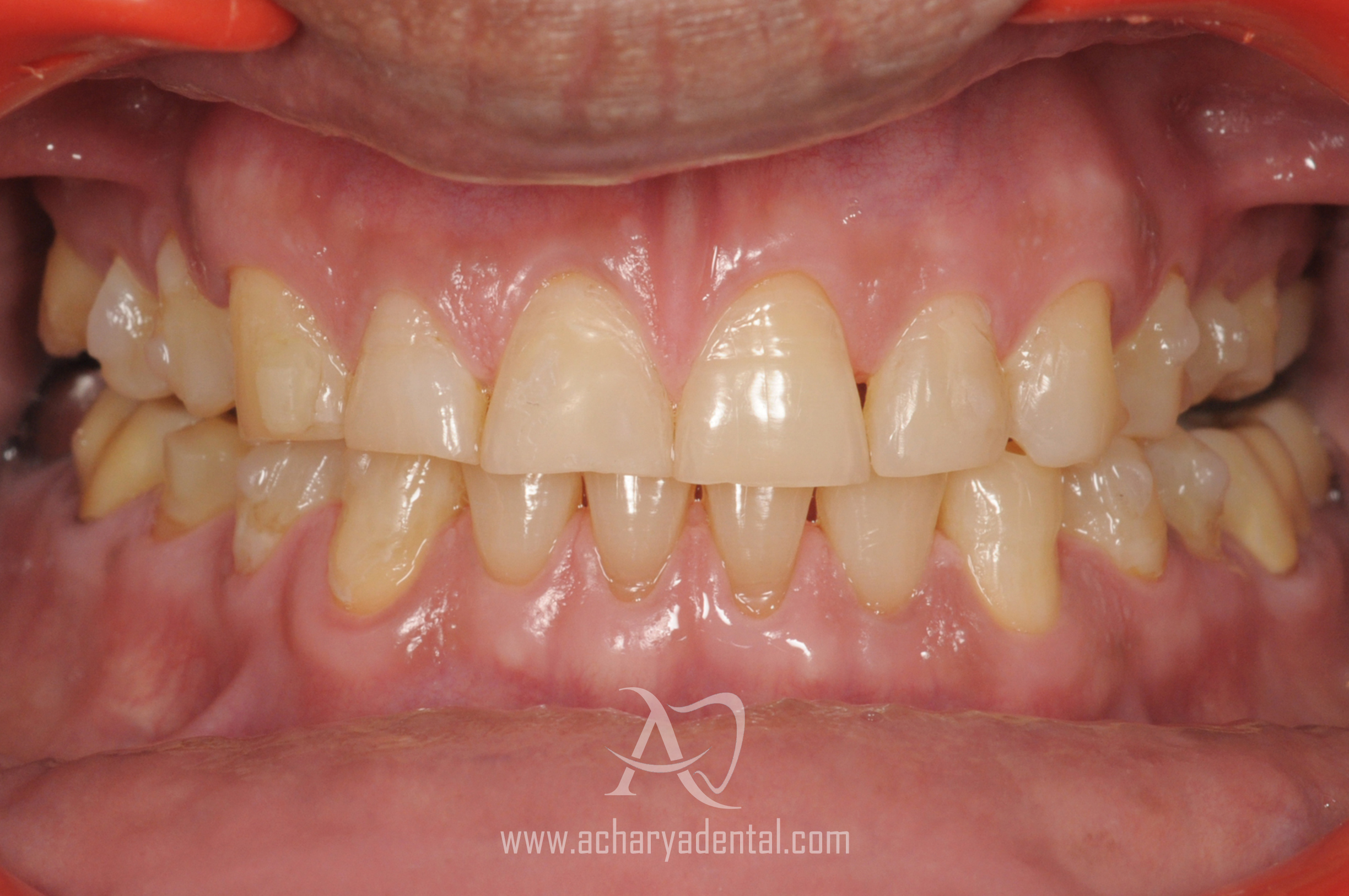 ortho treatment after