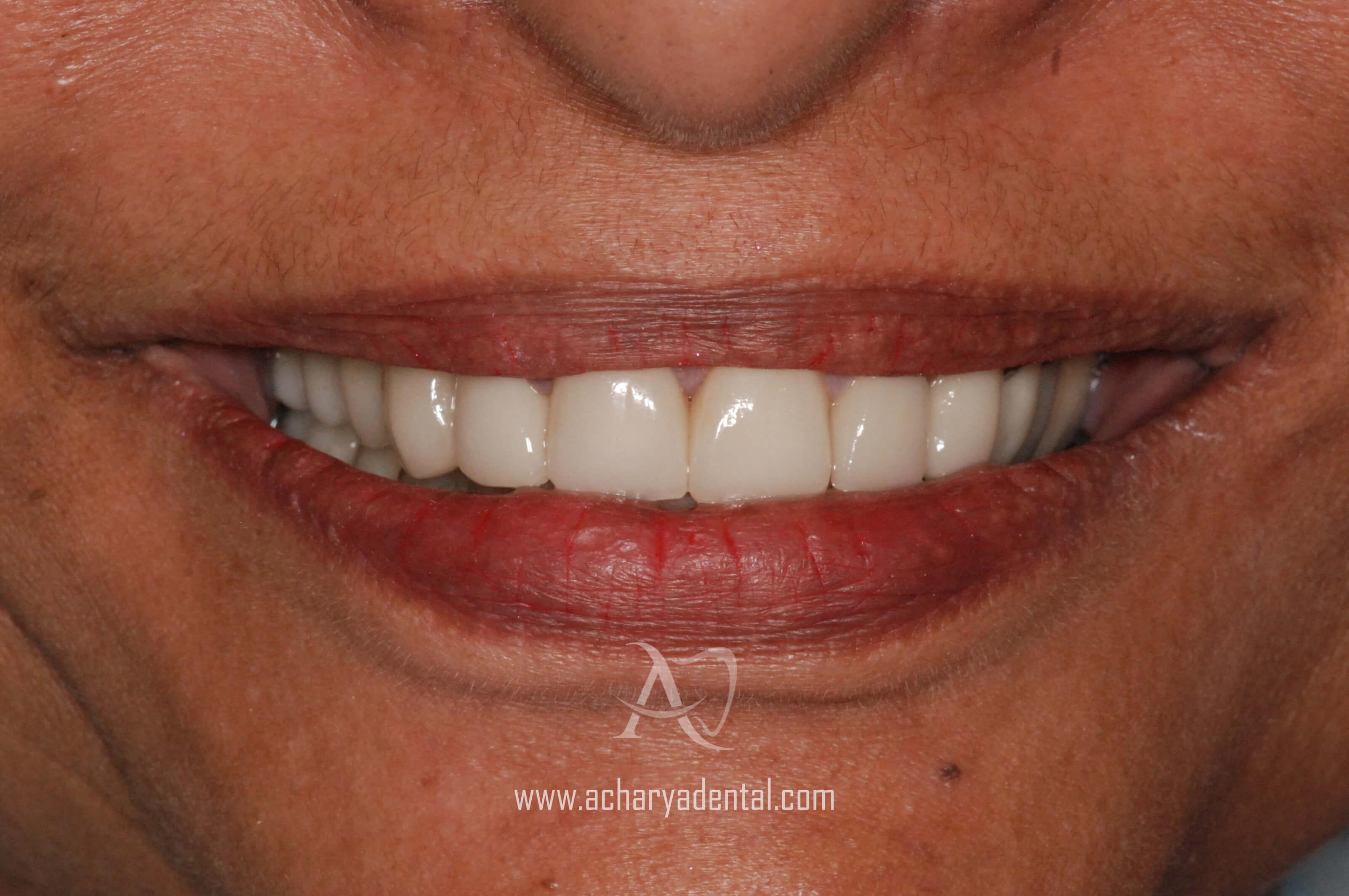 post dental implant treatment
