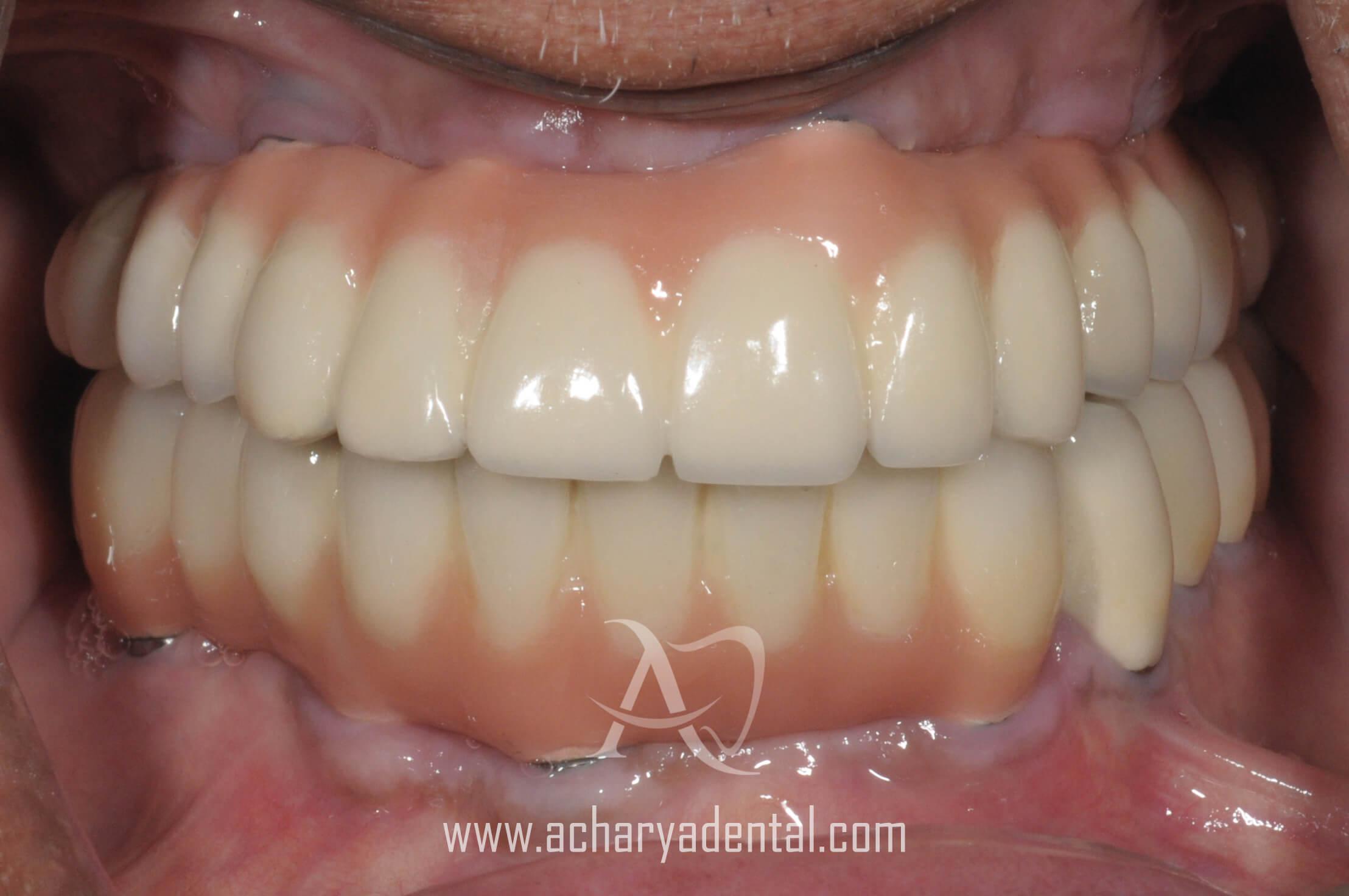 post dental implant