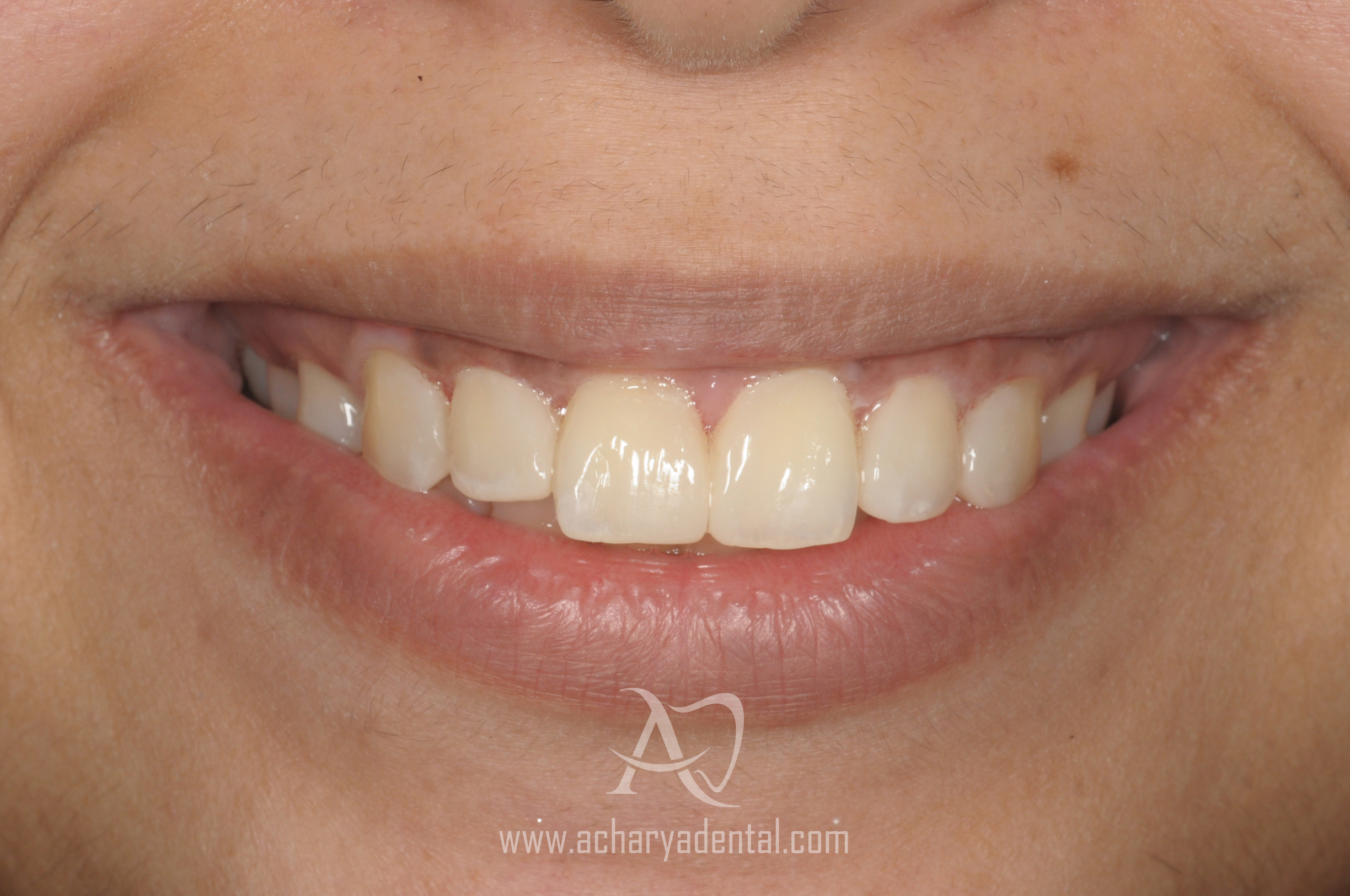 post smile makeover treatment
