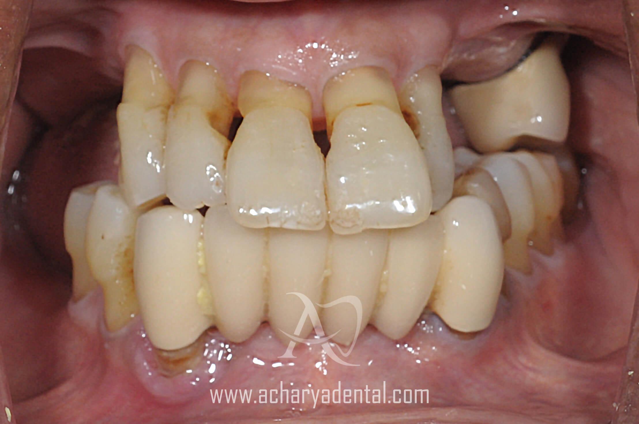 pre dental implant