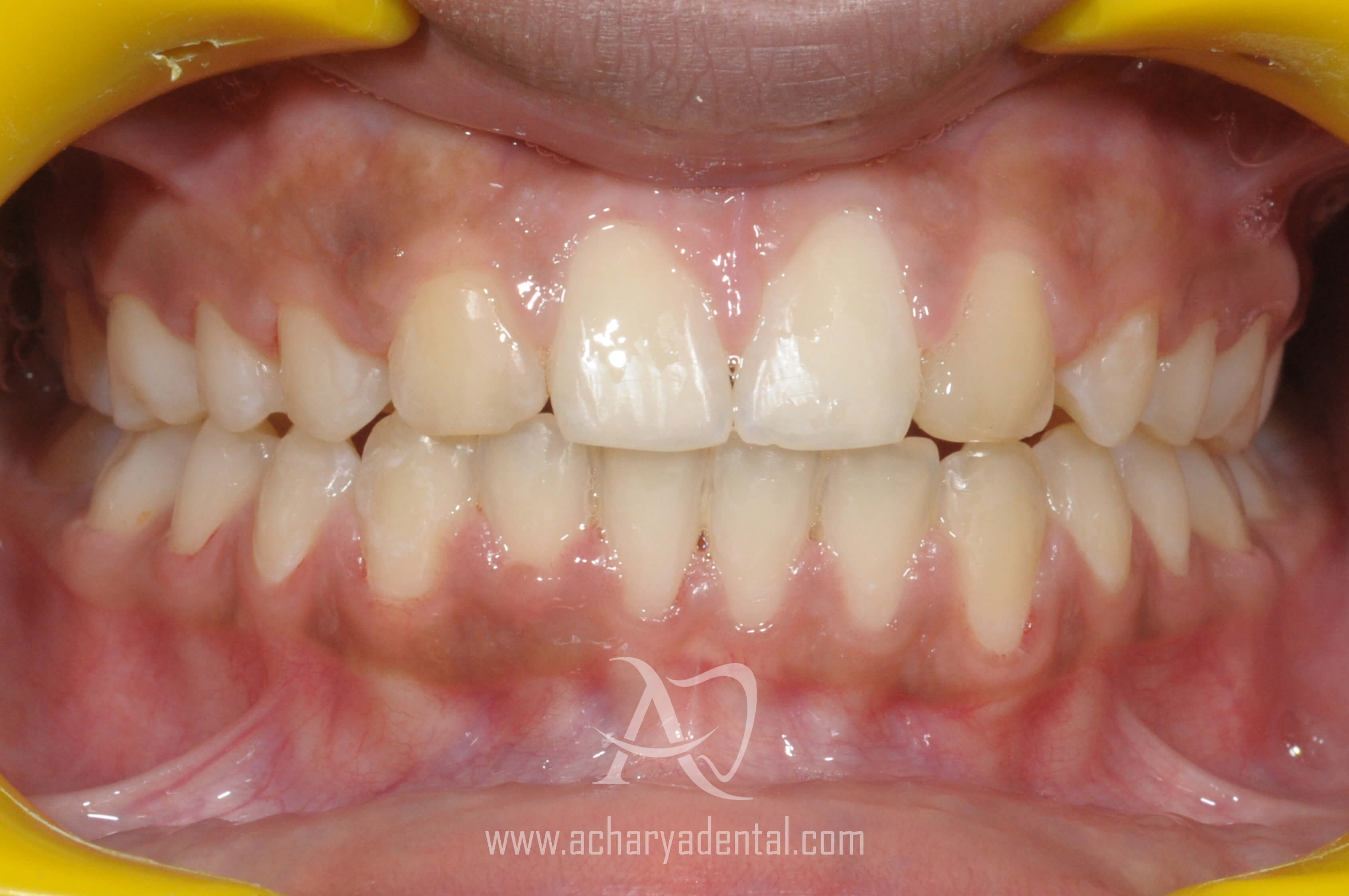 after orthodontics treatment
