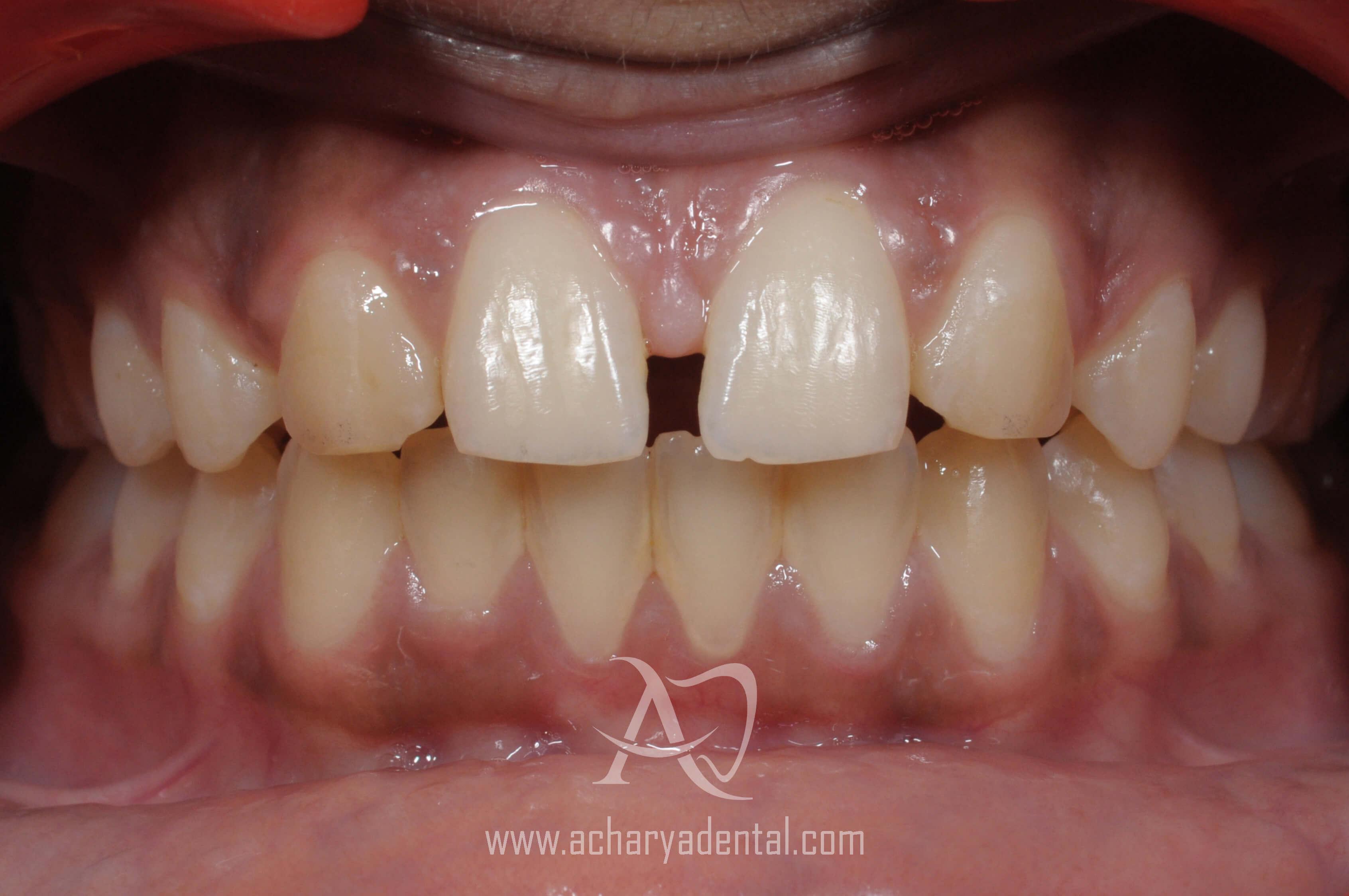 before orthodontics treatment