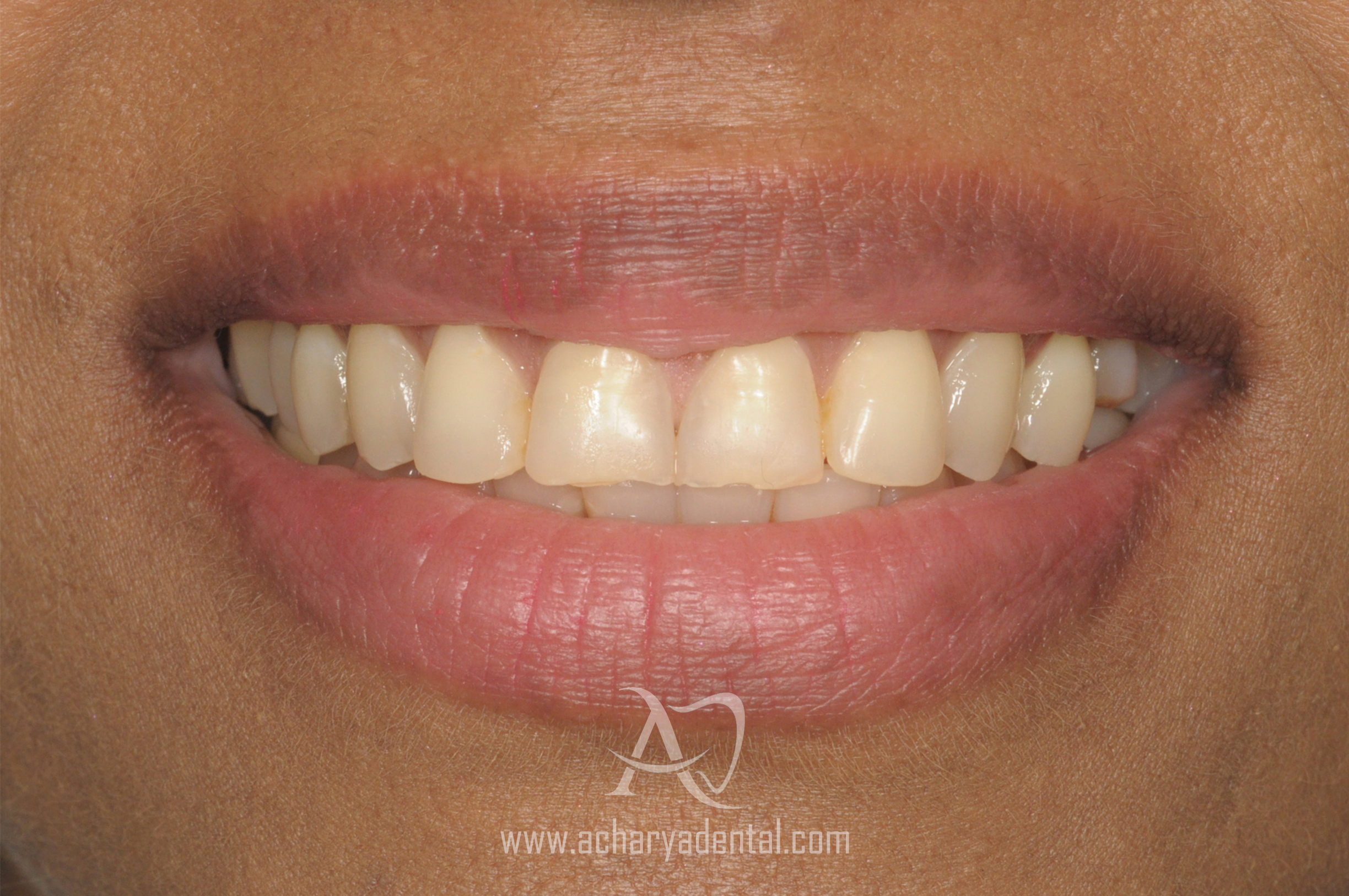 smilemakeover-before (1)
