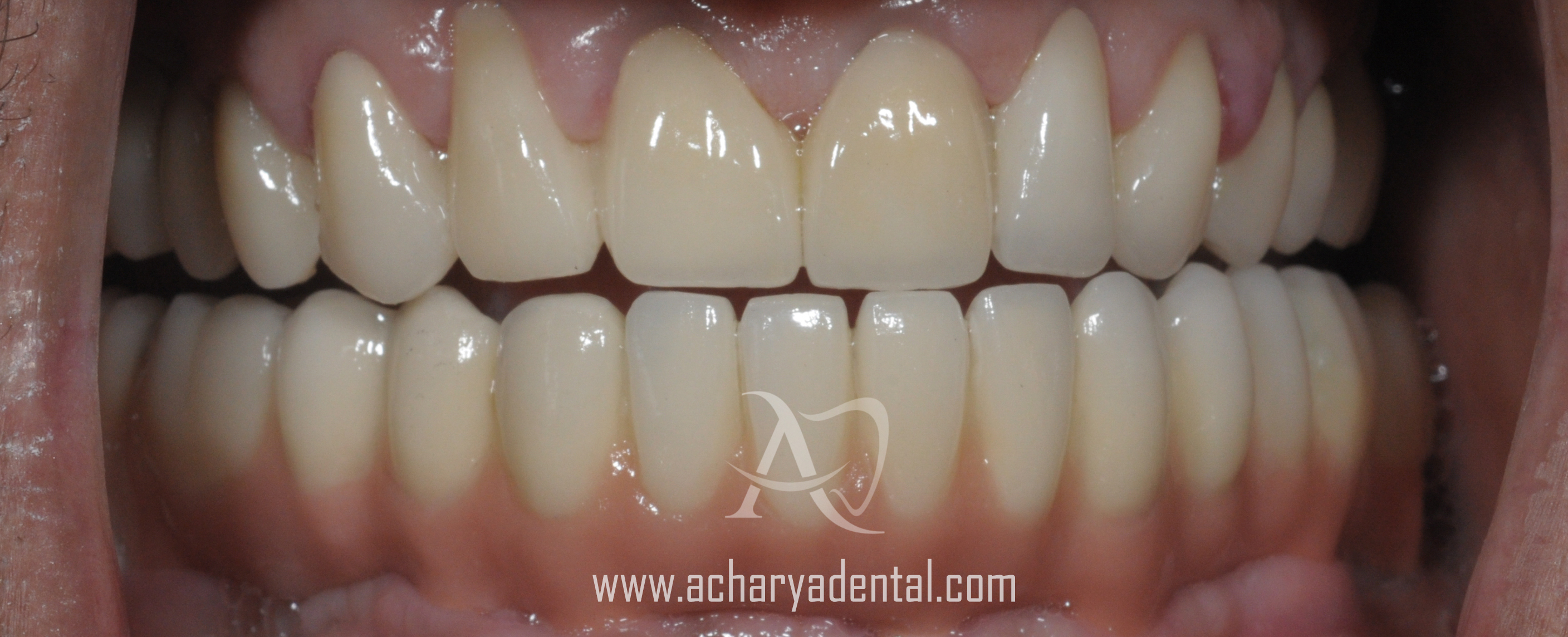 after dental implant diagnosis