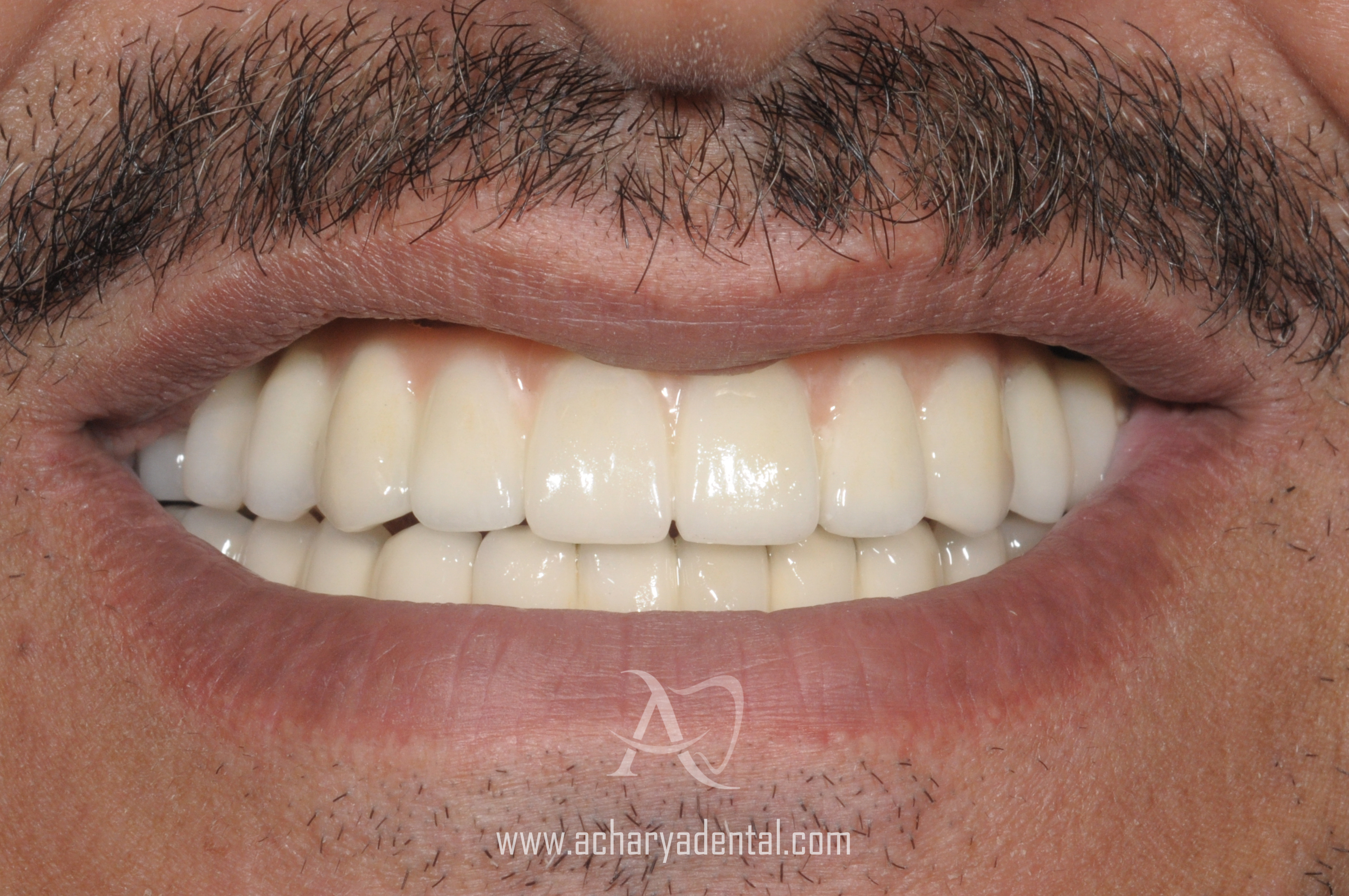 Dental Implants in Chennai, India | Best Dental Implant Cost