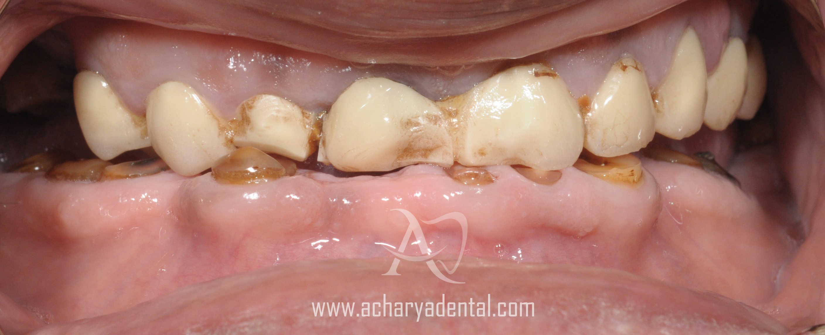 before dental implant diagnosis