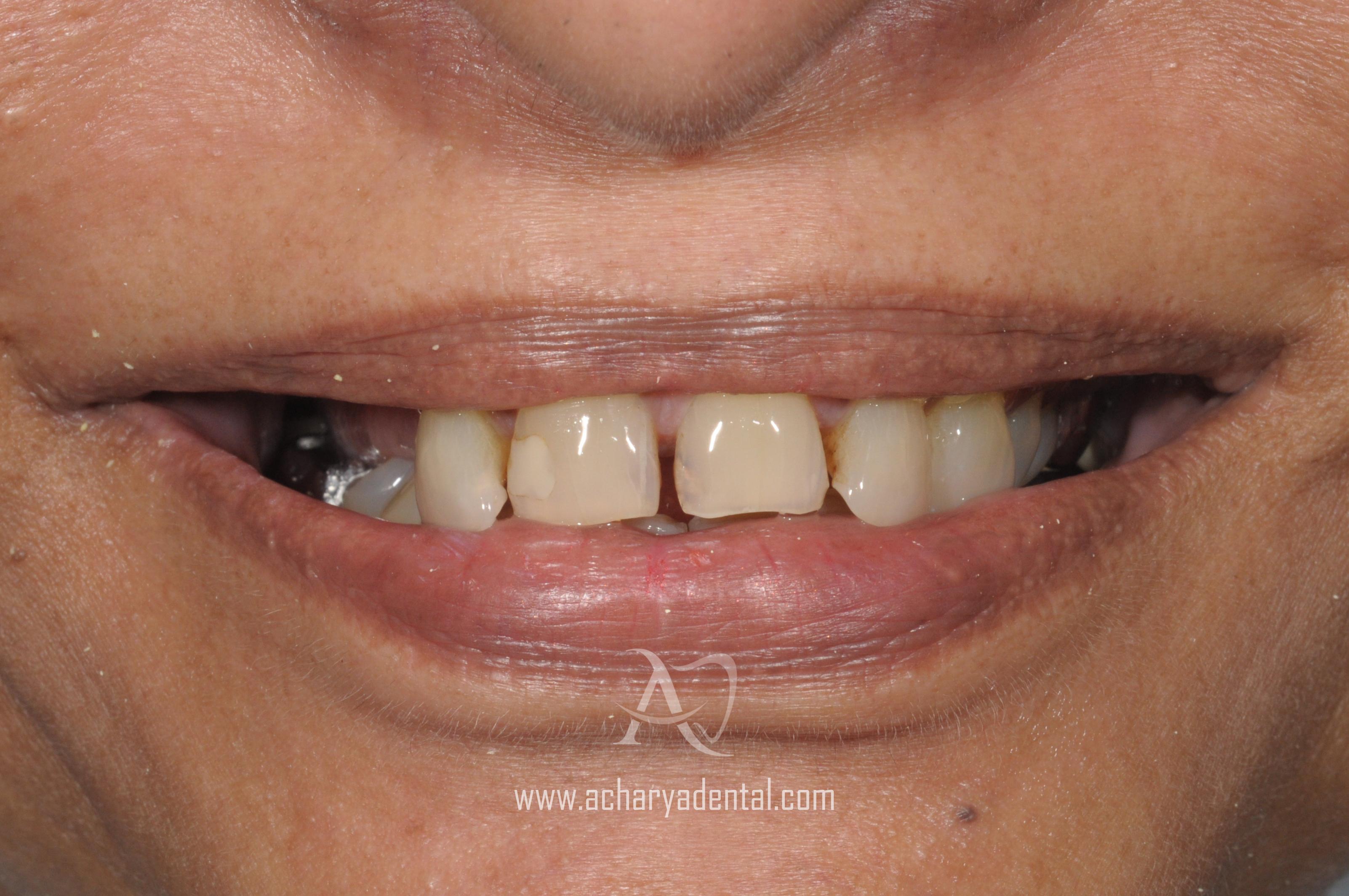 pre dental implant treatment
