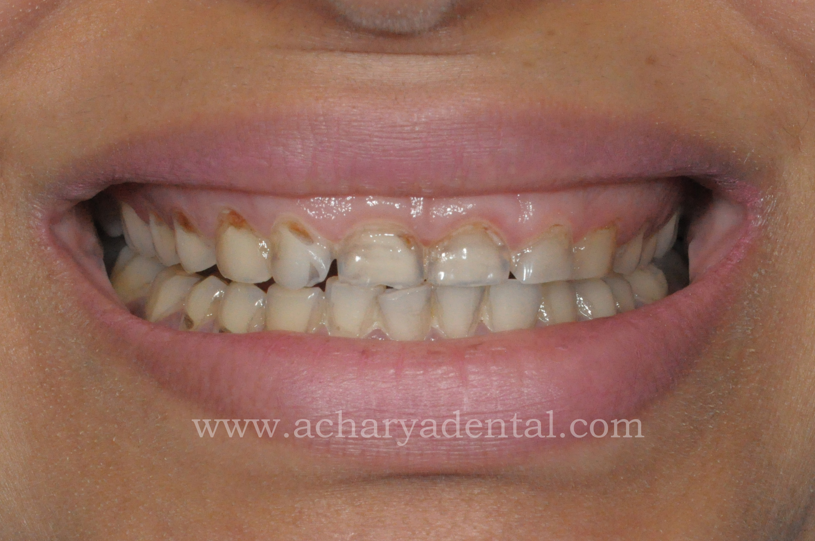 pre smile makeover treatment