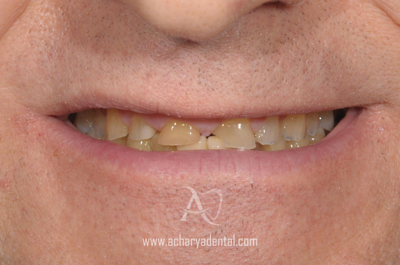 pre smile makeover