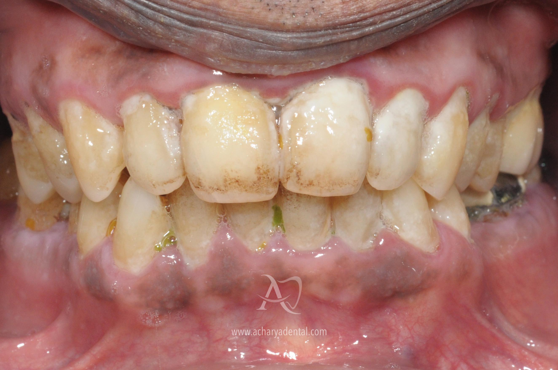 before teeth cleaning