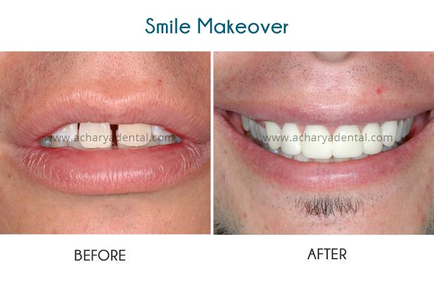 Dave's Smile makeover