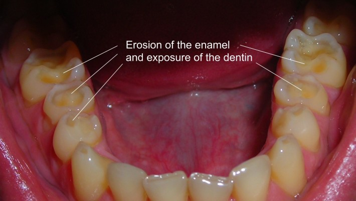 Causes of Tooth Erosion