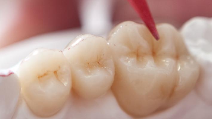 Dentistry at Acharya Dental