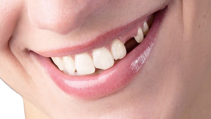 Does it really matter if you lose a tooth?