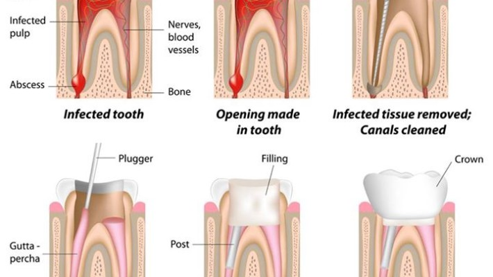 how to tell you need a root canal