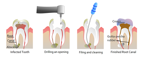 Root Canals to be done in one sitting!