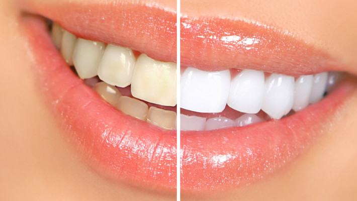 How do you protect your newly bleached, bonded, crowned or veneered teeth