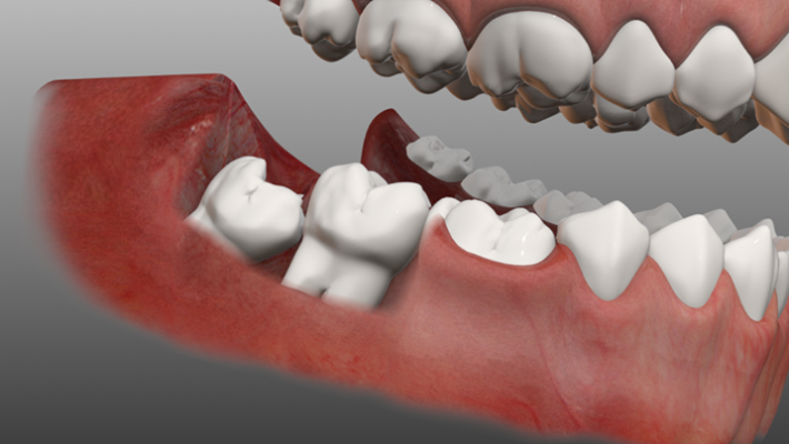 How to treat a wisdom tooth?
