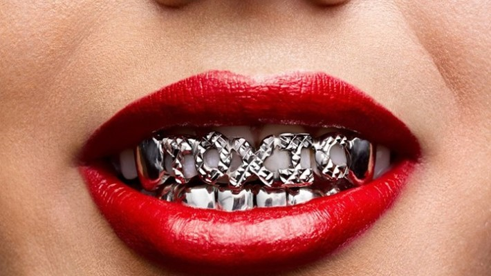 What are Dental grills?