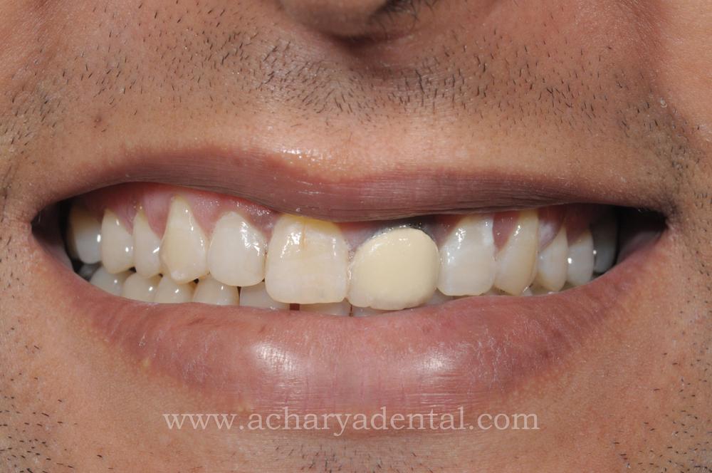 Gum Surgery Laser Gum Surgery Dental Surgery In Chennai