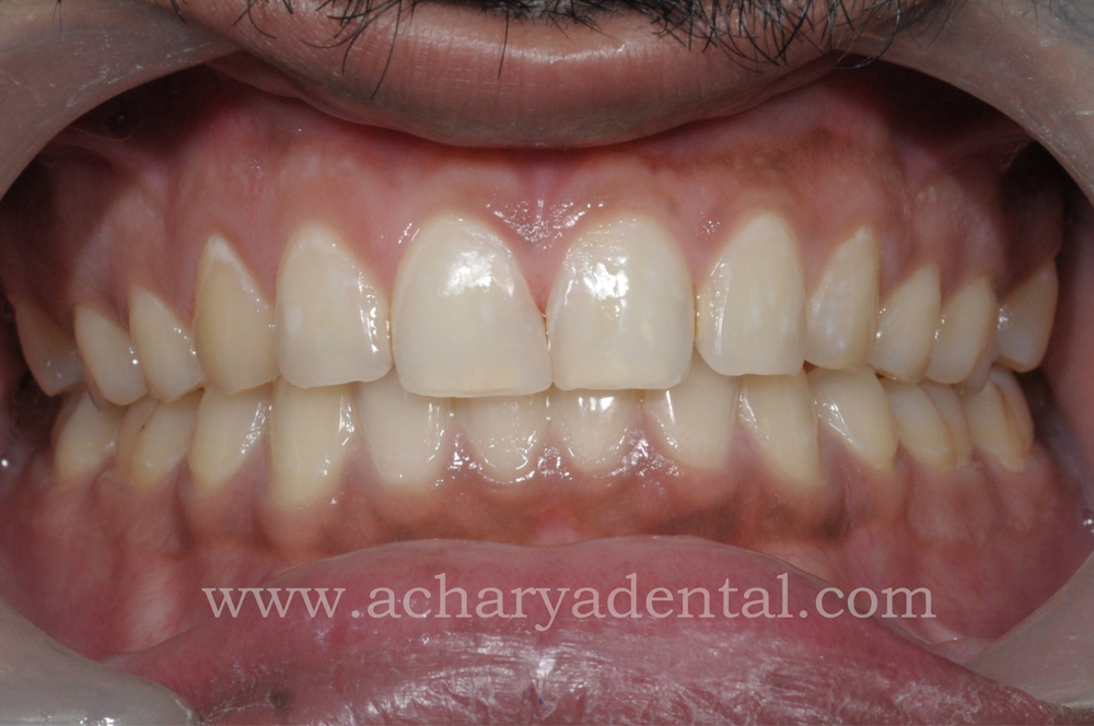 Dentures Near Me >> How Much Does Tooth Filling Cost in Chennai   Dental fillings near me