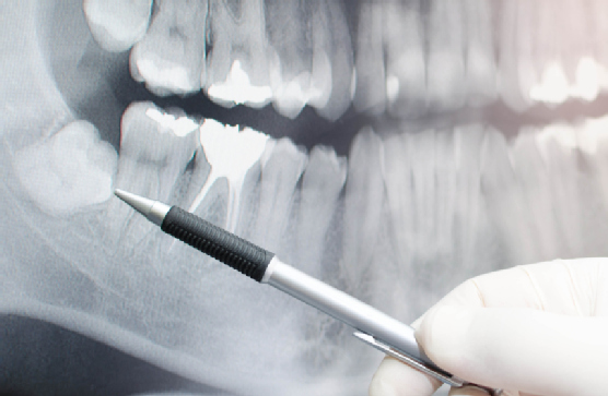 Did you know that X-rays help detect dental problems?